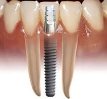Dental Implants, what are they and can I have them?