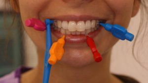 Use of Inter-dental Brushes for a Healthy Smile