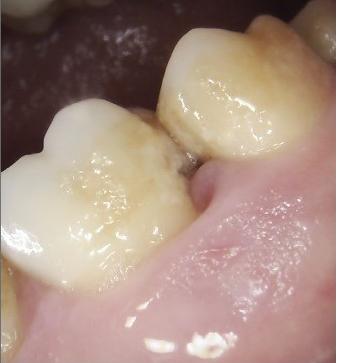 Plaque build up in between teeth that have not been flossed