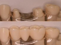 Missing teeth replaced with a fixed bridge