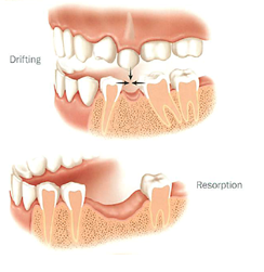Picture showing the resorption and drifting of teeth that can happen if a missing tooth is not replaced