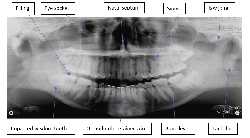 OPG x-ray of whole mouth