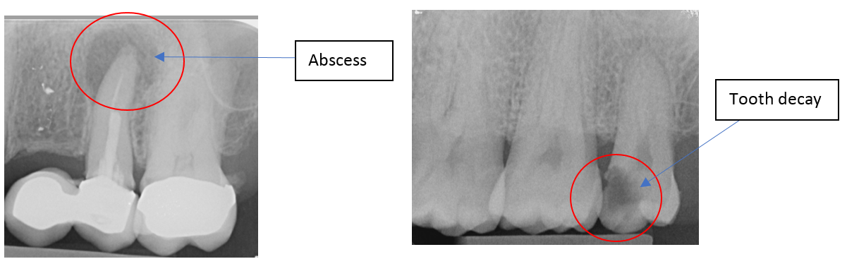 Labelled x-ray to show an abscess and tooth decay