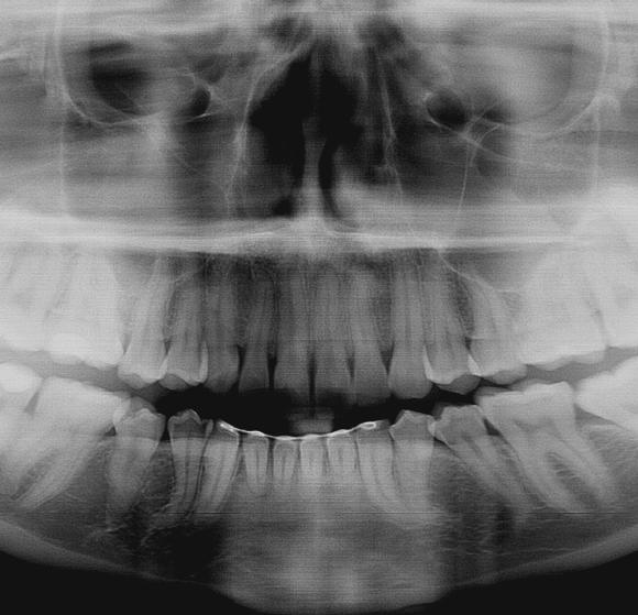 Dental X-Rays, a Peek Inside your Teeth