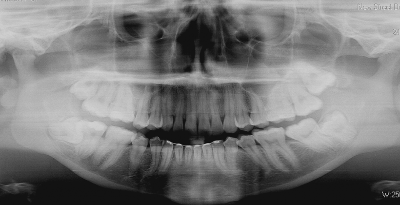 Dental X-Rays, a Peek Inside your Teeth