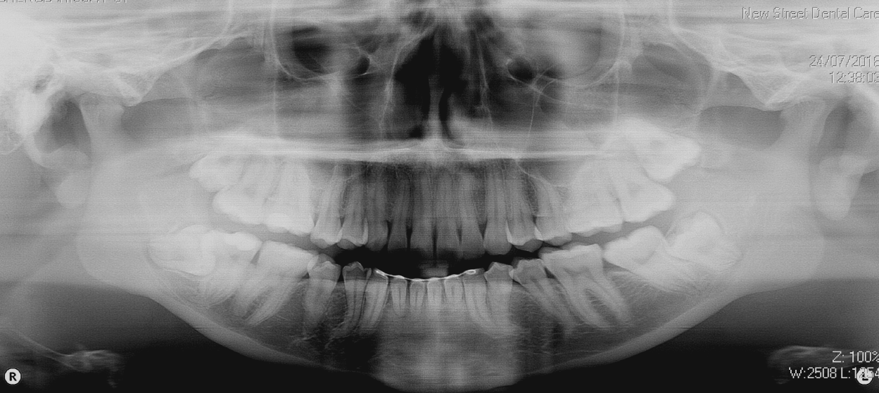OPG dental x-ray