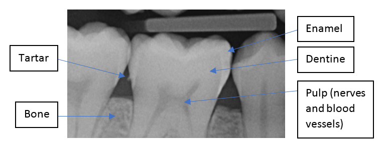 X-ray labelled to show the different parts of the teeth you can see