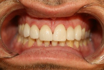 Dental Veneers Placed on the Top Teeth at New Street Dental Care Andover