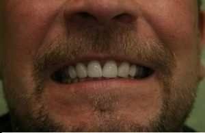 Picture of the veneers after treatment and how they have changed his smile