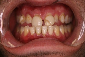 Teeth before Dental Veneers have been placed on the top teeth