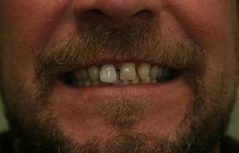 Before treatment of Dental Veneers at New Street Dental Care