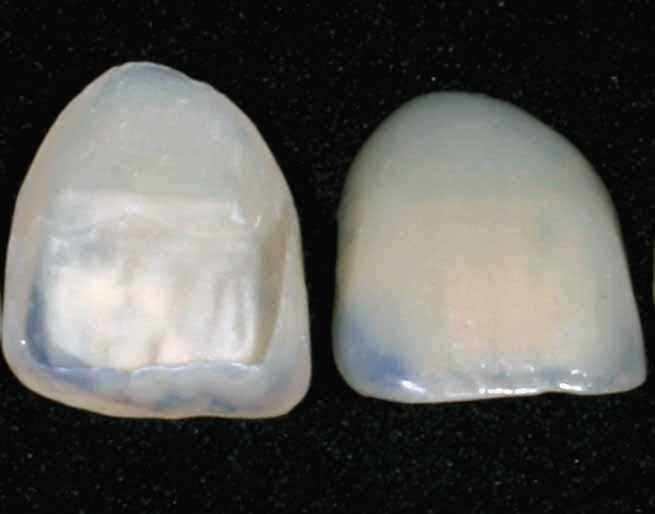 What a Dental Veneer Looks Like at New Street Dental Care Anodver