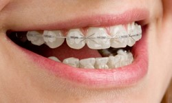 What ceramic fixed braces look like