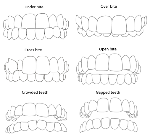 Diagram showing how teeth look before they are moved using different types of braces