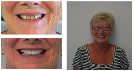 Testimonial from M. Smith who was very happy with her treatment of braces