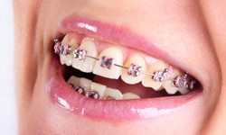 What traditional fixed braces look like