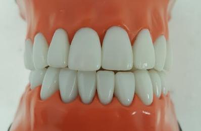 Fluoride strengthens enamel