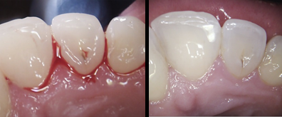Before and after pictures of a pateint with bleeding gums and then 2 weeks after flossing and seeing the hygienist
