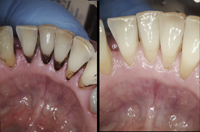 Staining can be removed by the hygienist at New Street Dntal Care with the ariflow polish
