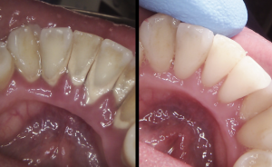 Before and after picture to show the removal of tartar