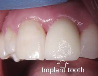 Picture of the same implant as the x-ray