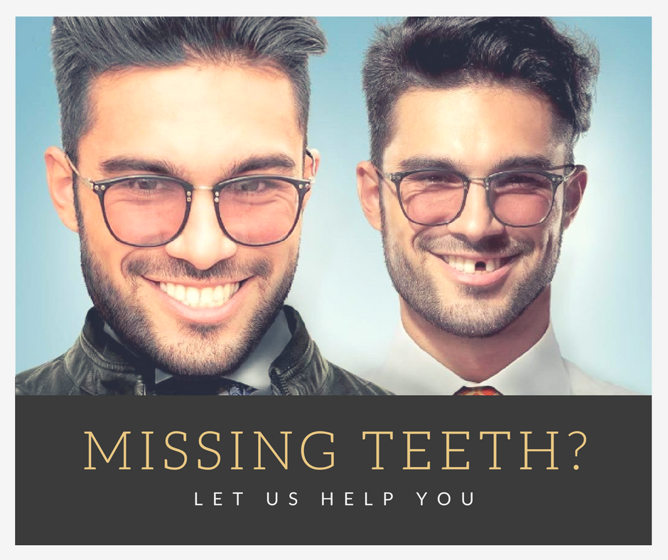 Missing teeth Andover Dentist